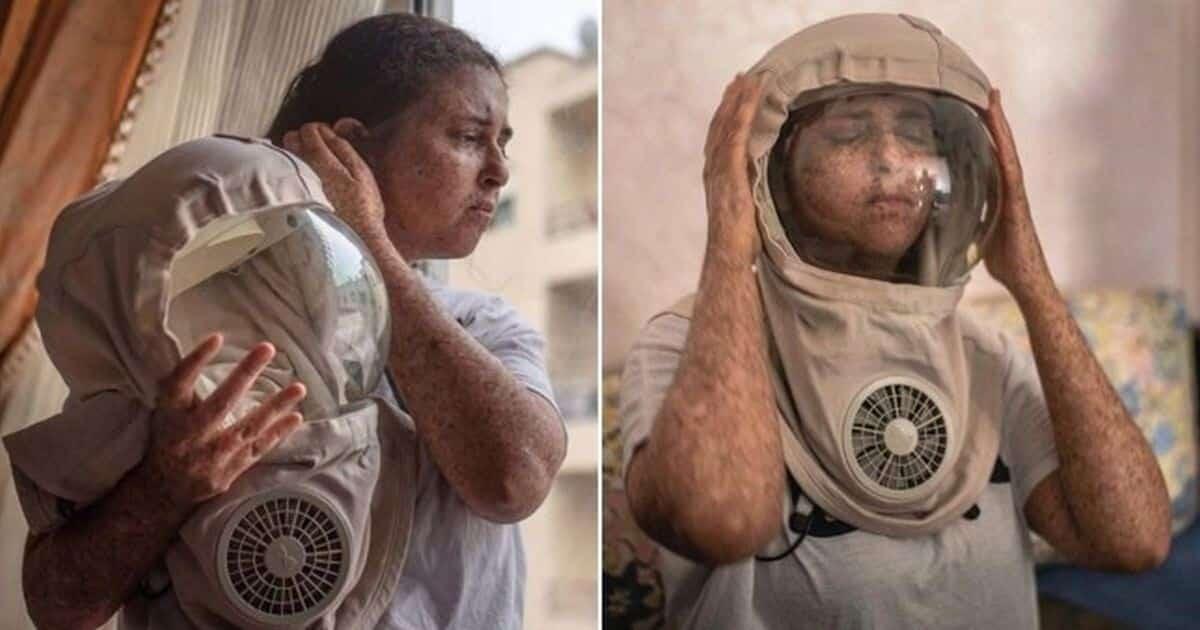 Уже больше 20 лет женщина из Марокко не может появится на улице без специального защитного скафандра