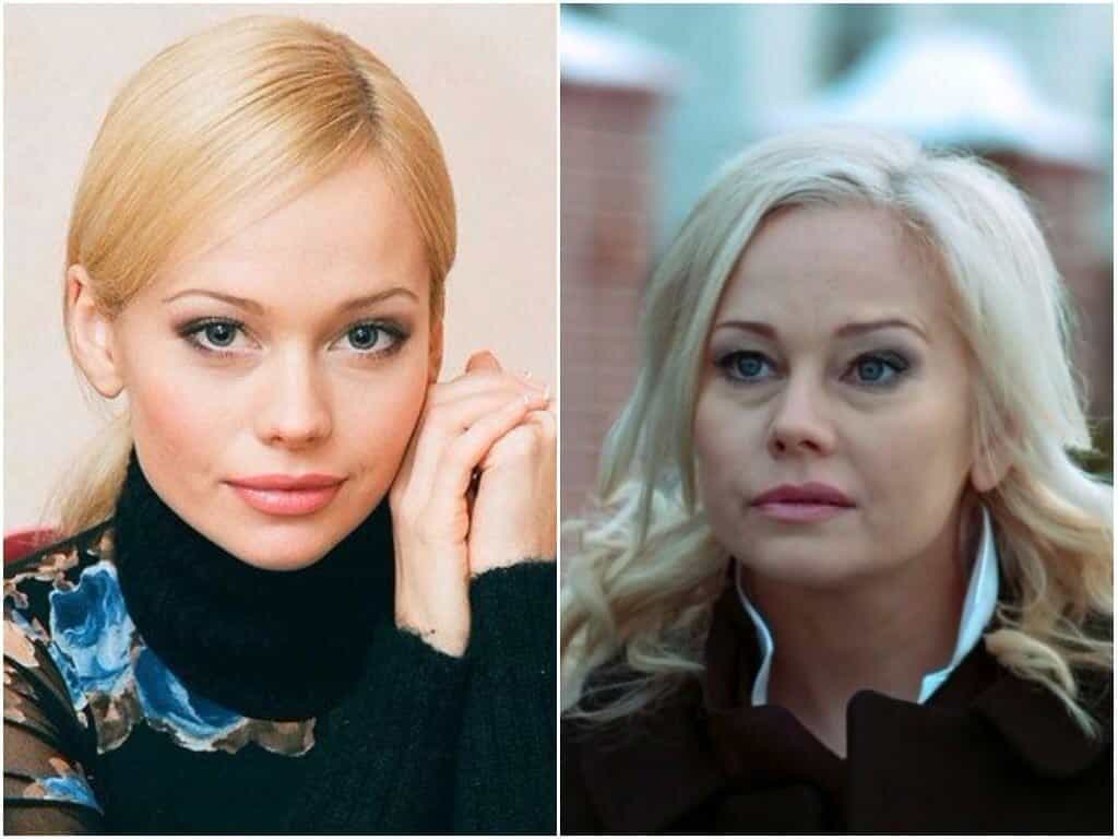 Что случилось с Еленой Кориковой: почему произошли изменения во внешности
